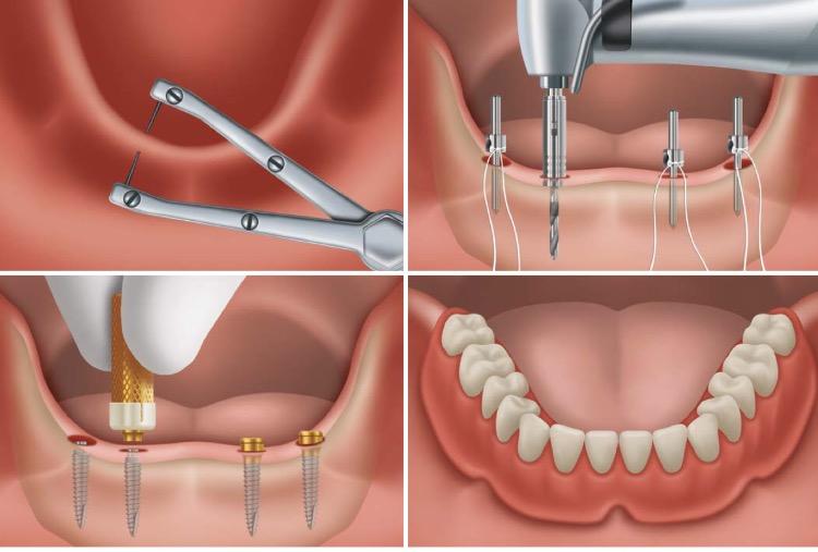 TRATAMIENTOS|  Rehabilitación completa mediante implantes