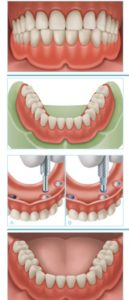 Rehabilitación completa mediante implantes