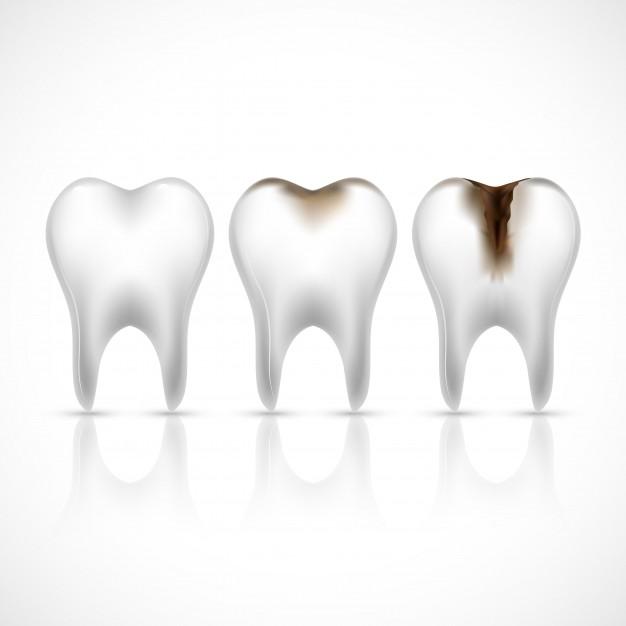 Trucos para una dentadura sin caries