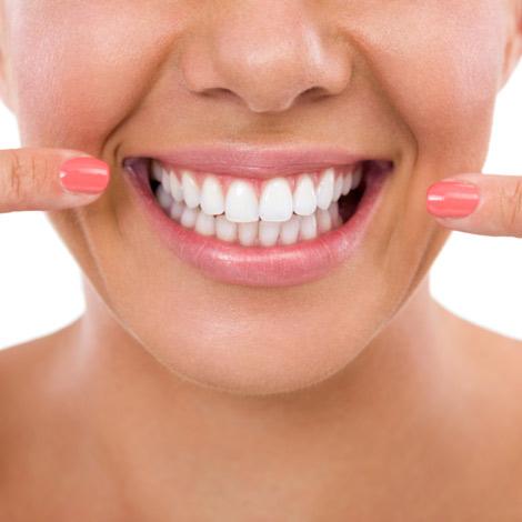 Blanqueamientos dentales caseros, ¿son efectivos?