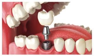 TRATAMIENTOS| Programa de revisión para los implantes dentales