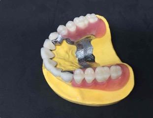 TRATAMIENTOS | Todo lo que debes saber sobre las prótesis dentales removibles