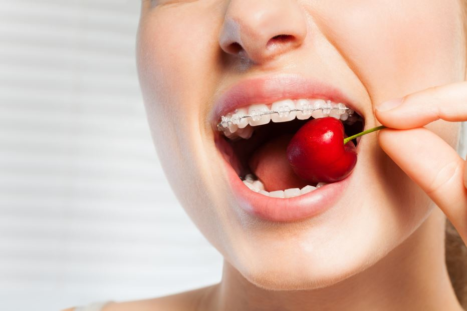 Qué alimentos no debes comer o cómo comerlos si llevas ortodoncia