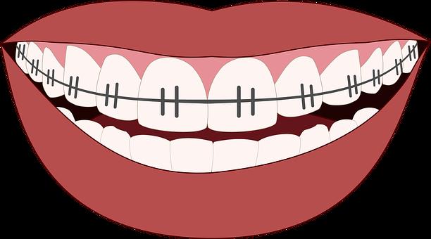 ¿Cómo aliviar las molestias provocadas por la ortodoncia?