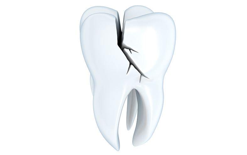 Todo lo que debes saber sobre el síndrome del diente fisurado