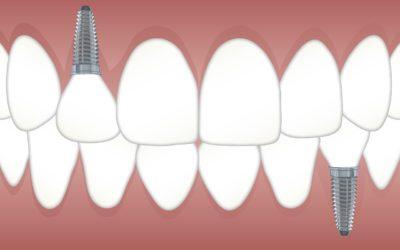 Implantes dentales: ¿qué cuidados debo seguir?