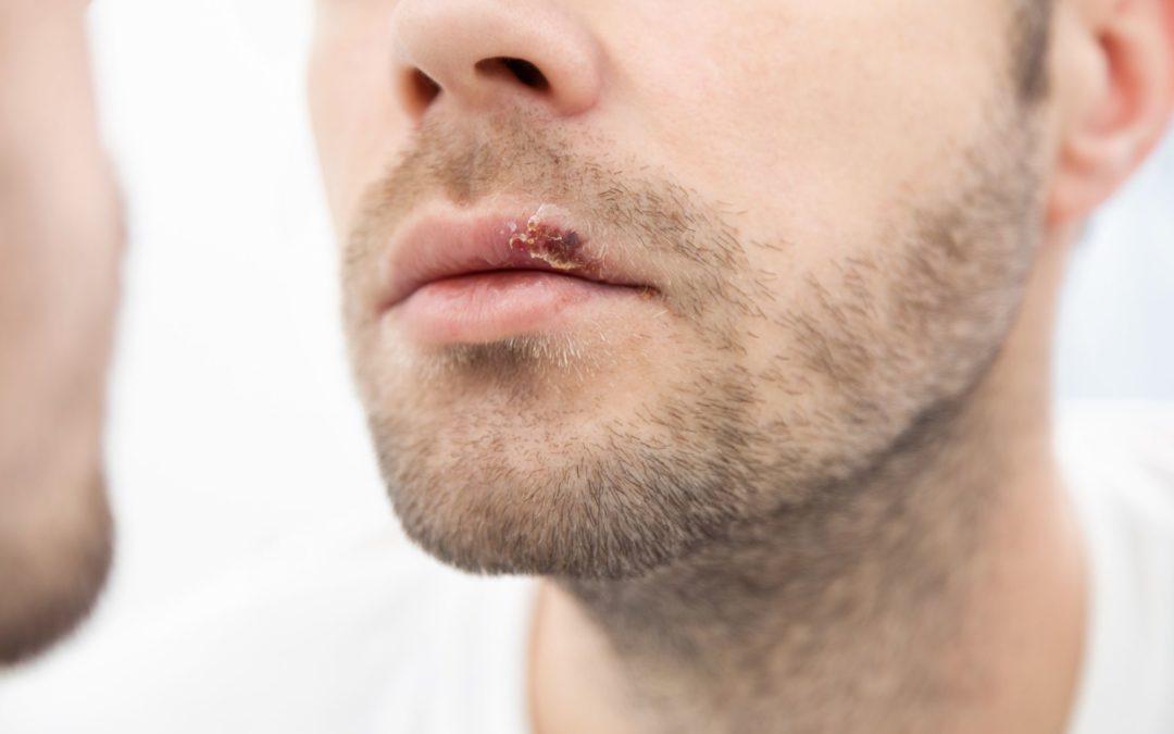 Las 5 infecciones bucales más frecuentes