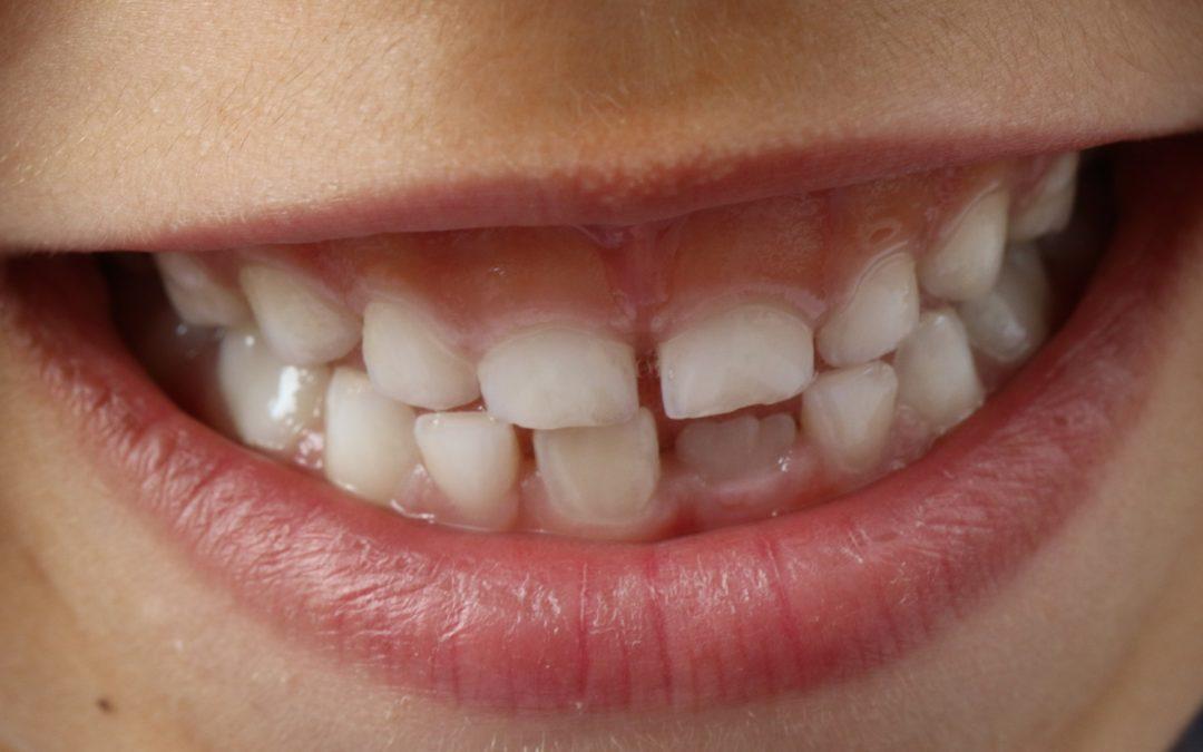 Recomendaciones de higiene bucal para niños