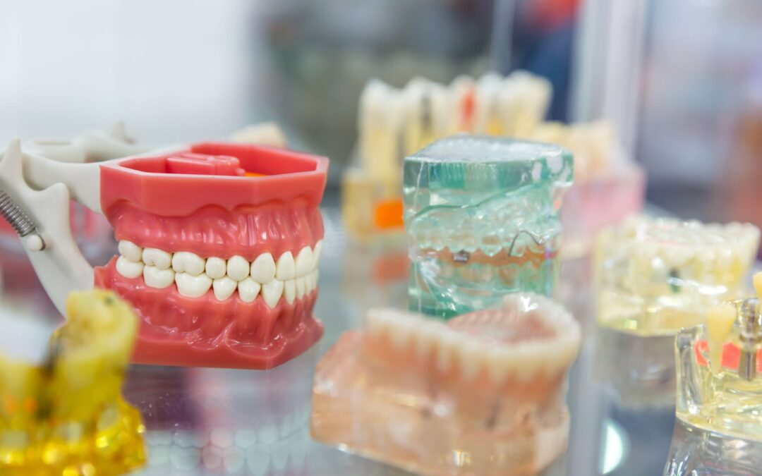 Consejos para mantener intacta tu dentadura postiza