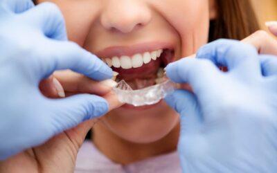 Ortodoncia invisible: una sonrisa perfecta sin complejos ni molestias