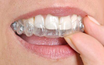 6 consejos para que los retenedores dentales te duren más tiempo